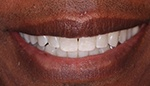 Closeup of perfectly aligned teeth after Invisalign
