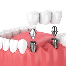 two dental implants supporting a bridge