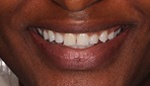 Closeup of woman's unevenly spaced teeth