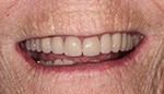 Closeup of healthy natural looking smile