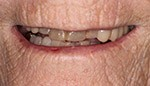 Closeup of damaged and discolored teeth