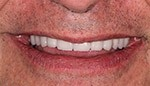 Closeup of healhty properly aligned smile
