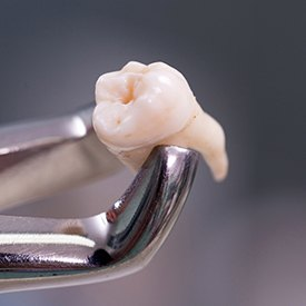 Metal clasp holding extracted tooth