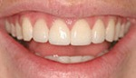 Closeup of beautiful smile after veneer placement