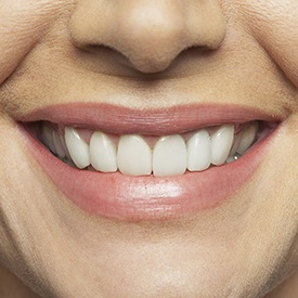 Closeup of flawless healthy smile