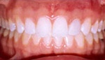 Brilliant white teeth after whitening