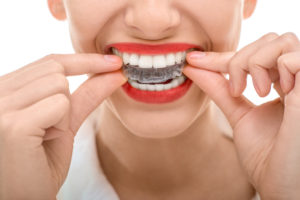 Straighten your teeth with Invisalign in Mesquite.