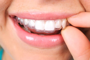 Do you have any more Invisalign questions for your Mesquite Dentist?
