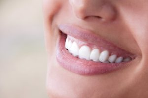 Smiling woman with beautiful, improved teeth