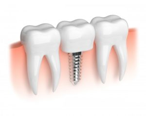 3D illustration of dental implants in mesquite